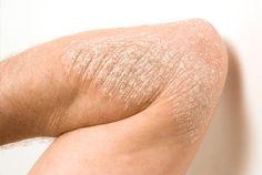 #sedef · Sedef Ve Egzama Hastalığına Bitkisel Krem İle Çözüm Bulun   http://www.sedefveegzama.net/