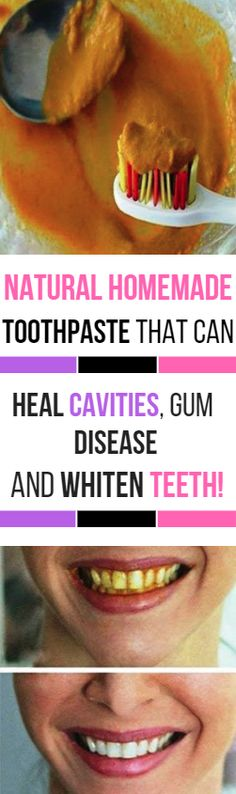 Natural Homemade Toothpaste That Can Heal Cavities, Gum Disease, And Whiten Teeth! Health And Beauty Tips, Health And Wellness, Health Tips, Natural Health Remedies, Natural Cures, Natural Healing, Limpieza Natural, Homemade Toothpaste, Homemade Skin Care