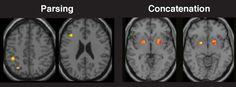 How brain performs 'motor chunking' tasks: Identified brain regions linked to the parsing (left) and concatenation (right) processes involved in motor chunking. Trials with greater parsing showed increased activation of the left prefrontal and parietal cortex and trials with greater concatenation showed increased activation of the putamen. (Credit: Photo by Nicholas Wymbs)