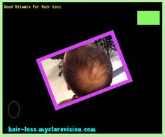 Good Vitamin For Hair Loss 125253 - Hair Loss Cure!