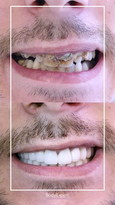 Look at our patient's beautiful brand new smile ! 😍 What do you think guys ? For more information, please contact us !. #Bodyexpert #Testimony #BeforeAfter #SmilePerfect #ImplantsDental #DentalCrowns #TestimonyDentalCare #PerfectTeeth #MedicalTourism #DentalCare #DentalClinics #Turkey #Istanbul #Hollywoodsmile #Emax #Zirconia Implants Dentaires, Dental Implants, Medical Care, Dental Care, Perfect Teeth, Dental Crowns, Teeth Care, Hair Transplant, Clinique
