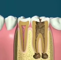 Save your teeth with a Root Canal Therapy Endodontics is the dental specialty that deals with the ne Dental World, Dental Life, Dental Art, Dental Health, Dental Assistant Study, Dental Hygiene Student, Dental Procedures, Dental Surgery, Dental Implants