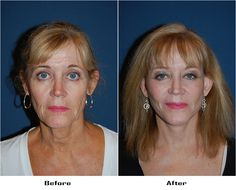 Procedures Performed: Endoscopic Brow Lift: Lateral Brow Lift Eyelid: Lower Lid Blepharoplasty with SOOF Deep Plane Minituck Laser Resurfacing: Eyes and Mouth Dr. Freeman's Makeovers Endoscopic Brow Lift, Co2 Laser Resurfacing, Eyelid Surgery, Brows, Eyes, Plane, Eyebrows, Eye Brows, Aircraft