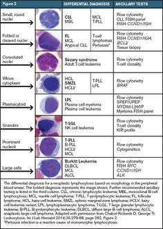 Diagnostic Approach to Lymphocytosis
