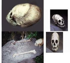 Project Avalon - Klaus Dona: The Hidden History of the Human Race- Bolivia ... And the most interesting photo is this one because you can see that the top of the skull does not have the three plates which we have as Homo sapiens. That shows us that these skeletons are not Homo sapiens. What we might be able is doing a DNA check and an age dating on these skeletons because we are very much wondering what kind of humans did exist long time ago, and how long ago.