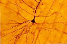 Betz cells,a type of pyramidal cell neuronslocated in the grey matter of the brain, are the largest neurons in the central nervous system, sometimes reaching 100μm in diameter.
