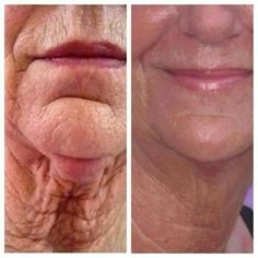 What product do you know of that has results like this? Give Nerium a try. Kevinandcilla.nerium.com
