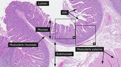 histological slides of the small intestine - Google Search
