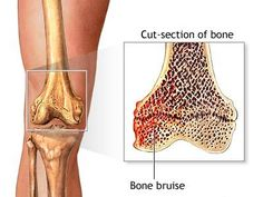 Osteoporosis Treatment Using Homeopathy Heal Bruises Faster, Bruised Knees, Knee Bones, Traditional Chinese Medicine, News Health, Knee Pain, Homeopathy, Fibromyalgia, Home Remedies