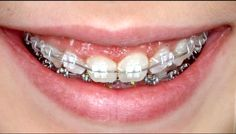 Correcting your bite or poorly aligned teeth should not be too obvious. Take advantage of ceramic braces from Great Smile Orthodontist. Achieve that perfect smile without suffering in the process. Perfect Smile, Beautiful Smile, Dental Health, Oral Health, Ceramic Braces, Cute Braces, Dental Braces, White Smile, Natural Teeth Whitening