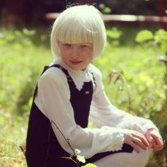 Beautiful albino girl.