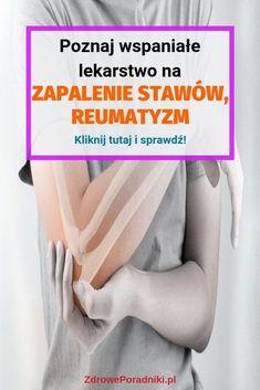 Poznaj wspaniałe lekarstwo na zapalenie stawów, reumatyzm