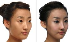 """Thẩm mỹ khuôn mặt 3D - Vẻ đẹp """"hoàn hảo"""" cho khuôn mặt"""