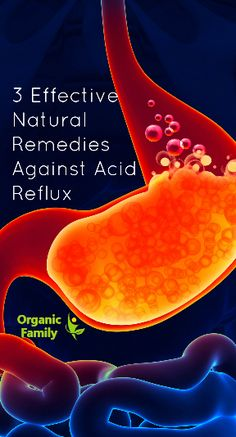 3 Effective Natural Remedies Against Acid Reflux - Organic Family What Causes Acid Reflux, Acid Reflux Home Remedies, Natural Remedies For Heartburn, Reflux Symptoms, Natural Cures, Gerd Symptoms, Herbal Remedies, Health Remedies
