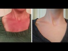 lavender and peppermint to her skin after her sunburn. The burn was completely gone in three days with little to no peeling, Heal Sunburn Fast, Best For Sunburn, How To Help Sunburn, Essential Oil For Sunburn, Cure For Sunburn, How To Treat Sunburn, Get Rid Of Sunburn, Natural Remedies For Rosacea, Sunburn Relief