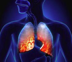 7 jel, amiből felismerhető a tüdőgyulladás
