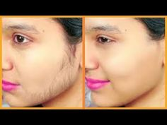Are you tired of people picking out your facial hair in public? do you want to get them removed permanently? there are natural ways to remove your facial Ugly Hair, At Home Hair Removal, Whitening Face, Remover, Unwanted Hair, Unwanted Facial, Homemade Skin Care, Skin Problems, Health Tips