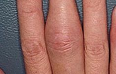 Psoriatic arthritis: Signs and symptoms | aad.org