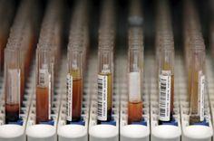 Cientista portuguesa inventou teste rápido ao grupo sanguíneo - PÚBLICO