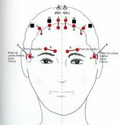 Ponto A = coluna cervical  Ponto B = ombro (cintura escapular)  Ponto C = articulação do ombro, extremidades superiores  Ponto D = coluna lombar, extremidades inferiores  Ponto E = tórax  Ponto F = nervo isquiático (ou ciático)  Ponto G = joelho  Ponto H= ponto lombar extra (ou acessório)  Ponto I = ponto lombar/ciático extra (ou acessório)  Ponto J = dorso do pé (face superior)  Ponto K= planta do pé (sola)