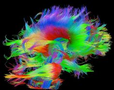 When mapped and color-coded, the brain is a beautiful thing. These mind blowing visuals are images of the human brain's pathways, tracking the circuits in our heads and showing how we process information with bright, neon colors. TheHuman Connectome Projectare the masterminds behind these amazing unearthly looking scientific studies.
