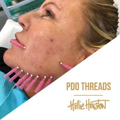 You can use PDO Threads on the Chin, Neck, Jawline, Brows and Smile Lines. Lasts up to 9 months. Do you feel your skin is starting to get loose? If yes, then this is the treatment for you 👍🏻 Availability October Southampton U. Botox Fillers, Dermal Fillers, Face Threading, Thread Lift, Aesthetic Dermatology, Face Lifting, Facial Aesthetics, Jawline, Skin Tightening