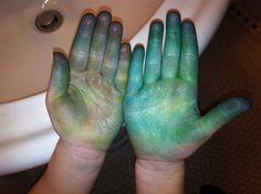 summer's hands from easter egg dye