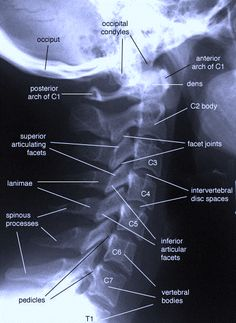 1000 Images About Base Of Neck Pain On Pinterest Neck