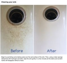 Porcelain Sinks Easily Scratch And Stain. Here Is An Easy, Cost Effective  Way To Clean Your Porcelain Sink And Remove The Unsightly Scratches For  Pennies.