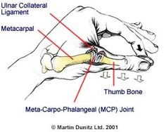 A Sprained Thumb Injury Can Stop You From Doing Many Day To Day Activities - Metro Physio www.metrophysio.co.uk