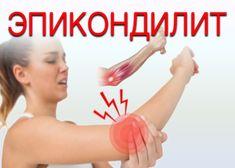 Эпикондилит локтевого сустава является воспалительным заболеванием в области локтя (там, где мышцы прикрепляются к кости предплечья). Заболевание в зависимости от места, где произошло воспаление, бывает...