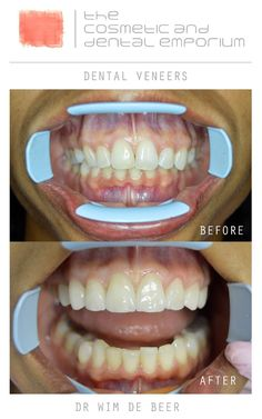 Effective teeth whitening purpose of root canal,rct treatment root canal explained,molar tooth cavity best dental care. Dental Hygiene, Dental Care, Molar Tooth, Dental Veneers, Dental Cosmetics, Root Canal, Cavities, Teeth Whitening, Dentistry