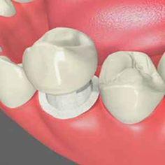 Bọc răng sứ Emax như thế nào?