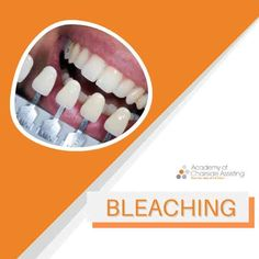 A bright smile not only presents a healthy and beautiful impression, but also increases one's interest in oral hygiene, allowing the patient to have higher self-confidence. Tooth Bleaching, Oral Hygiene, Self Confidence, Whitening, Presents, Bright, Smile, Healthy, Beautiful