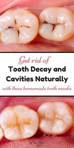 reverse tooth decay + tooth decay + tooth decay remedies + tooth + tooth ache relief - a pinch of salt 2 drops clove essential oil ¼ tsp organic coconut oil ¼ tsp turmeric powder Get rid of tooth decay and cavities naturally with these homemade tooth ma Teeth Health, Healthy Teeth, Dental Health, Oral Health, Dental Care, Baby Tooth Decay, Tooth Decay In Children, Reverse Cavities, Remedies For Tooth Ache