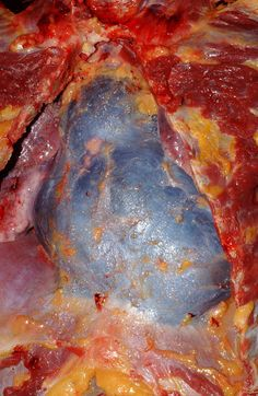 Hemopericardium: Caused by bleeding into the pericardial sac. The cause of this may be penetration by a sharp object or projectile, blunt chest trauma, rupture of the heart wall as a result of mitral. Forensic Science, Medical Science, Medical School, Mitral Valve, Surgical Tech, Forensic Anthropology, Physician Assistant, Nurse Life, Physiology