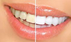 3 excelentes remedios caseros para blanquear tus dientes | Salud