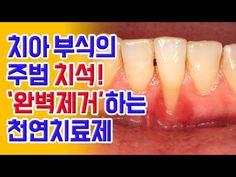 치아 부식의 주범 '치석' 완벽 제거하는 천연치료제 - YouTube