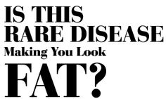 Online article about lipedema: Is this rare disease making you look fat?