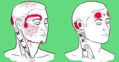 Hogyan szüntethető meg a migrén gyógyszer nélkül