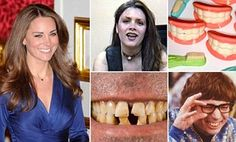How good TEETH are the new sign of social status #DailyMail