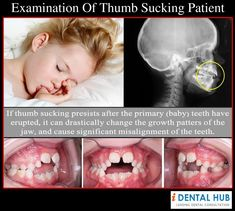 Examination of Thumbsucking child patient can reveal the changes in the features and parts of the body. There are changes in digits, lips, shape of thumb, facial features etc. Dentists can point out the changes to parents due to thumb sucking habbit.