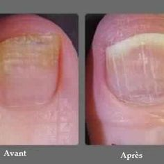 1000 images about soin des pieds on pinterest listerine ongles and ea - Comment se debarrasser des araignees rouges ...