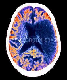 CT Scan (with contrast media) showing R-sided Stroke