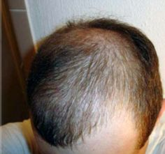 Regrowth Stages Of A Hair Transplant