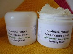 Handmade Natural Adult  Eczema Cream Light Weight Non Greasy 6 oz Jar