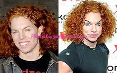 Melanie Griffith Plastic Surgery Gone Wrong Http