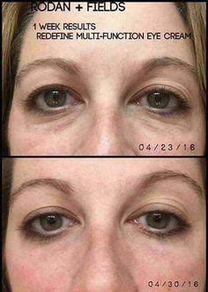 Can your eye cream do this  Dark circles cf94c11a0462c