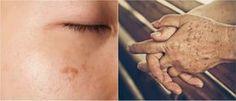 stařecké skvrny: rozmixovat cibli a jablečný ocet nanášet směs tamponkem na postižená místa