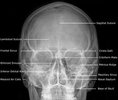 59 Best Radiographs Labeling S On Pinterest Rad Tech. Dentistry Lectures For Mfdsmjdfnbdeore Radiographic Anatomy Of Facial Bones And Mandible With Radiological Abnormalities The Skull. Wiring. Mouth Diagram Labeled Radiograph At Scoala.co